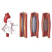 Инвазивна кардиология